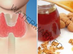 Лечение на щитовидна гуша с домашно приготвено средство