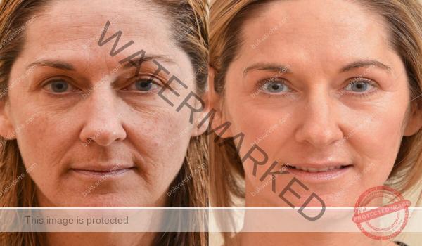 Порцеланова кожа без бръчки: маска с мед и сол