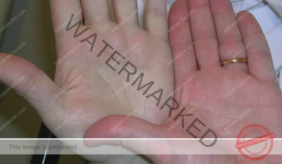 Симптоми по дланите, които подсказват заболяване