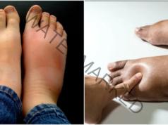 Защо краката се подуват и как да се справите с този проблем?