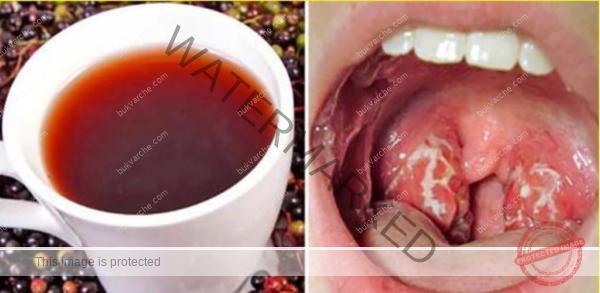 При болезнено гърло си пригответе следната смес с червено цвекло