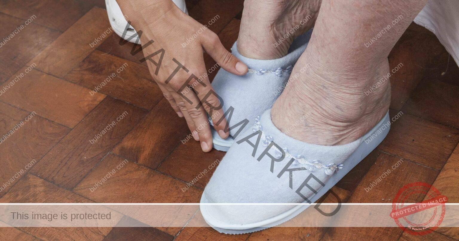 Подуването на краката може да сигнализира за сериозни заболявания