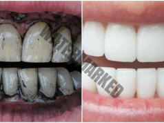 Домашно избелване на зъбите с активен въглен