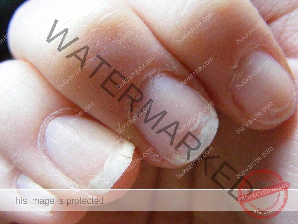 Лек за чупливи нокти, косопад и безсъние. Лесна рецепта