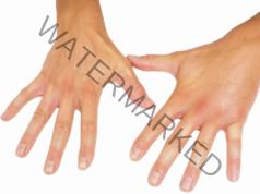 Защо ръцете изтръпват през нощта? Основни причини