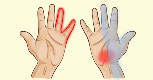 Защо ръцете ви изтръпват: 6 сериозни заболявания