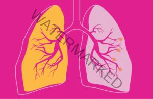 Лек с червен лук при астма и белодробни заболявания