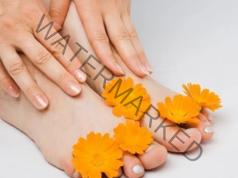 Микоза на ноктите се лекува с тази домашна рецепта