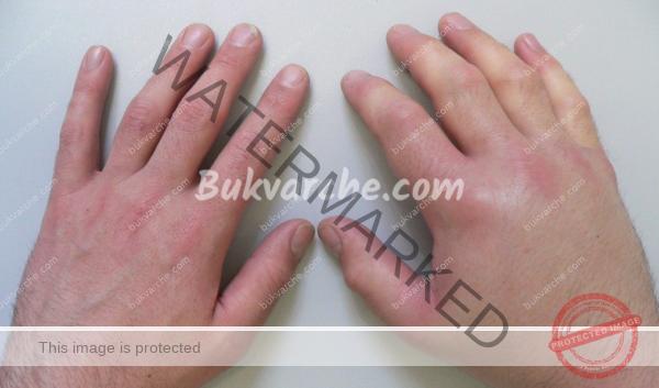 Подуване на пръстите – какви са възможните причини