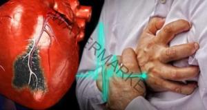 Ако получите сърдечен удар и сте сами - ето какво да направите