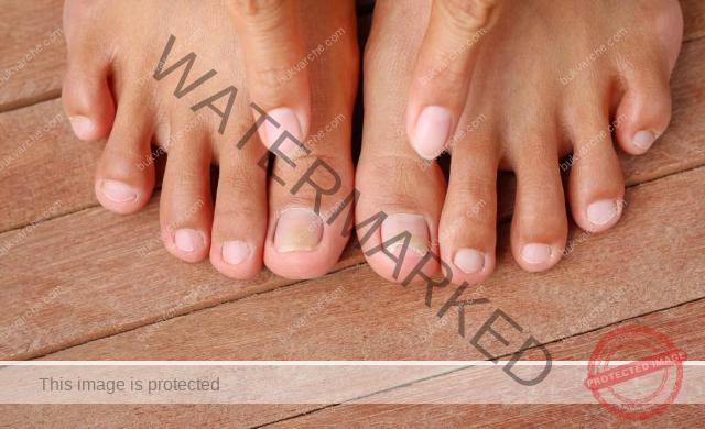 Гъбичките по ноктите нямат шанс срещу този народен лек