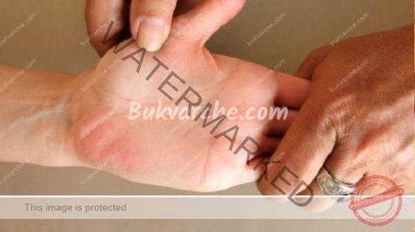 Лявата длан ви сърби – какво е обяснението за това