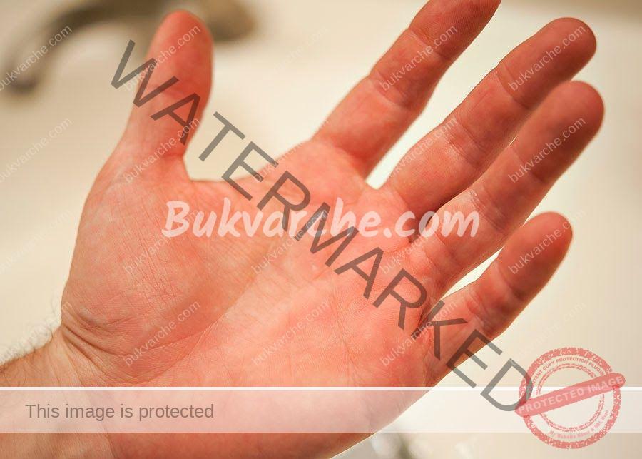 Лявата длан ви сърби - какво е обяснението за това?