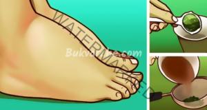 Защо се подуват краката и какво да направите?