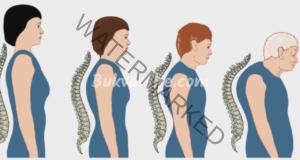 Изкривяване на гръбнака и как да го коригирате?