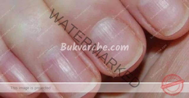 Лек за гъбички по ноктите със сода за хляб и оцет