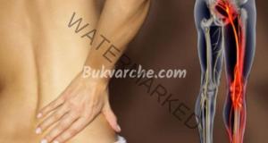 Прищипан седалищен нерв и упражнения за облекчаване на болката